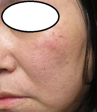 頬の大きいしみのレーザー治療の2週目の経過。