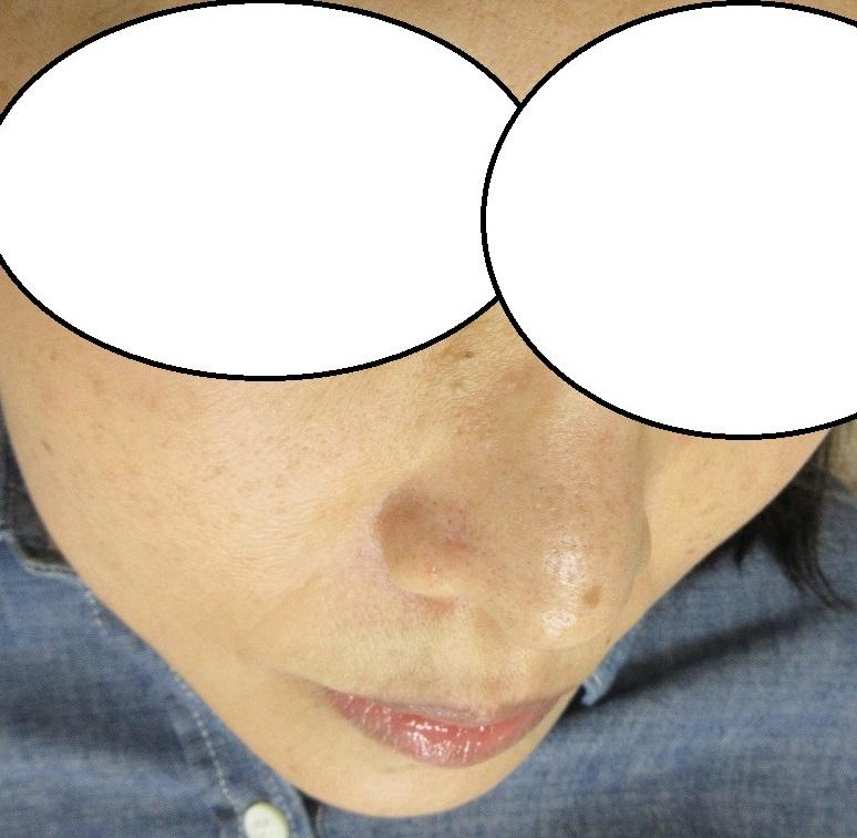 小鼻の9ミリ大のホクロの切除。7か月目の経過。