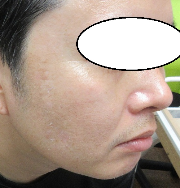 メンズのシミレーザー治療。2週目の経過。