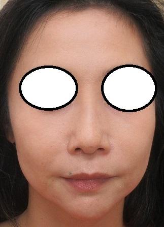 3年間で鼻筋に合計10本Gメッシュ・オメガVLを挿入しました(最後は本年4月に1本追加)。ヒアルロン酸・ほうれい線・直後。