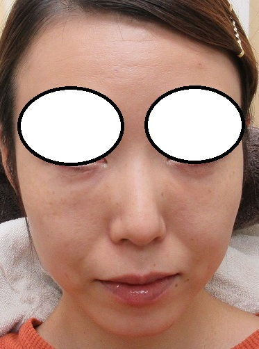 傷の残らない目の下のクマの手術。1か月目の経過。追加で目の下に脂肪幹細胞上清液注入療法も施行。