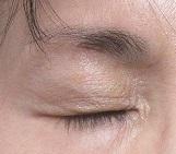 瞼のシミの経過。2か月目。