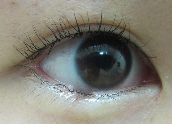 右下眼瞼のまつ毛の際のホクロの切除。直後の状態。