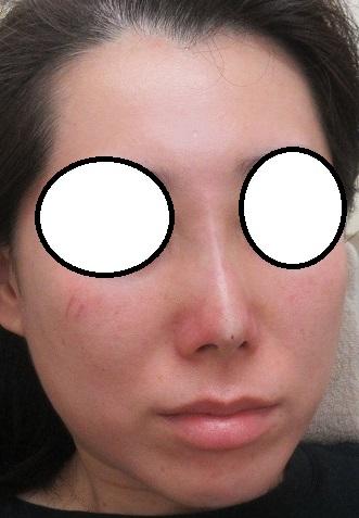糸による隆鼻術+鼻尖形成(Gメッシュ4本+クレオパトラノーズ(ミスコ)4本)。直後の状態。