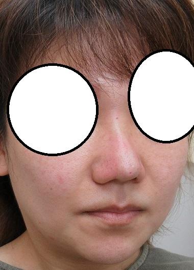 Gメッシュとクレオパトラノーズ4本ずつによる鼻の形成。直後の状態。