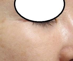 下眼瞼の5ミリ大のホクロの切除。2年目の経過。