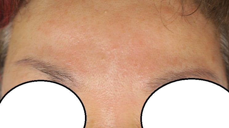 眉間のスジ状のシワをボトックスと再生医療でかなり薄くすることができました(4年10か月目)。