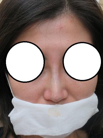 鼻筋通す糸のオメガVLを4本挿入。直後の状態。