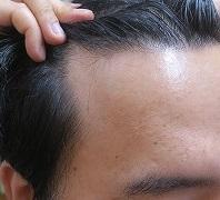 AGA治療(薄毛治療)は継続が必要です。1年しないでここまで改善します。