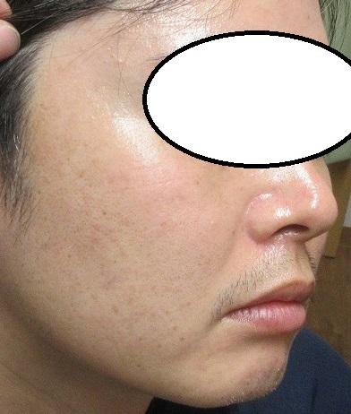メンズのシミレーザー治療。2か月目の経過。