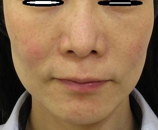 ウルトラセルQプラスや目の下のクマの手術などの複合治療で若返る。2年4か月目。