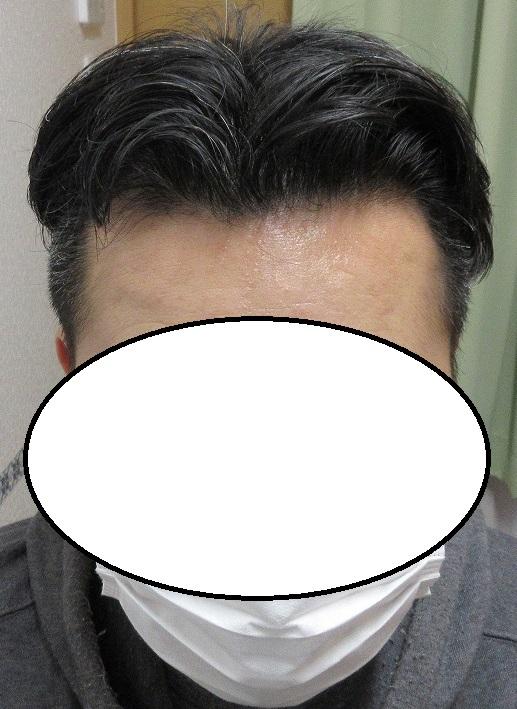 豊洲で薄毛(AGA)治療。2年11か月目。