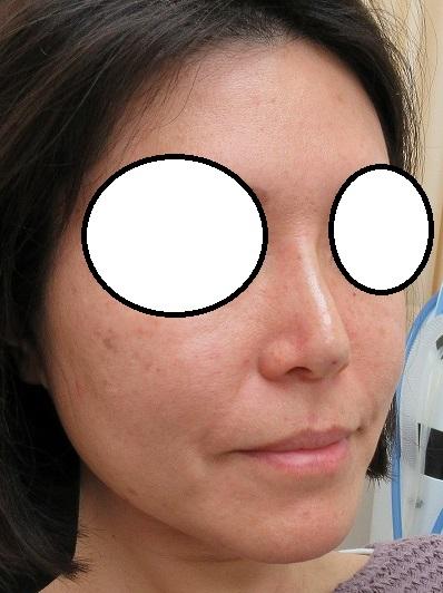 糸による鼻筋形成。Gメッシュより安価なオメガVLで直後からシュッとなりました。
