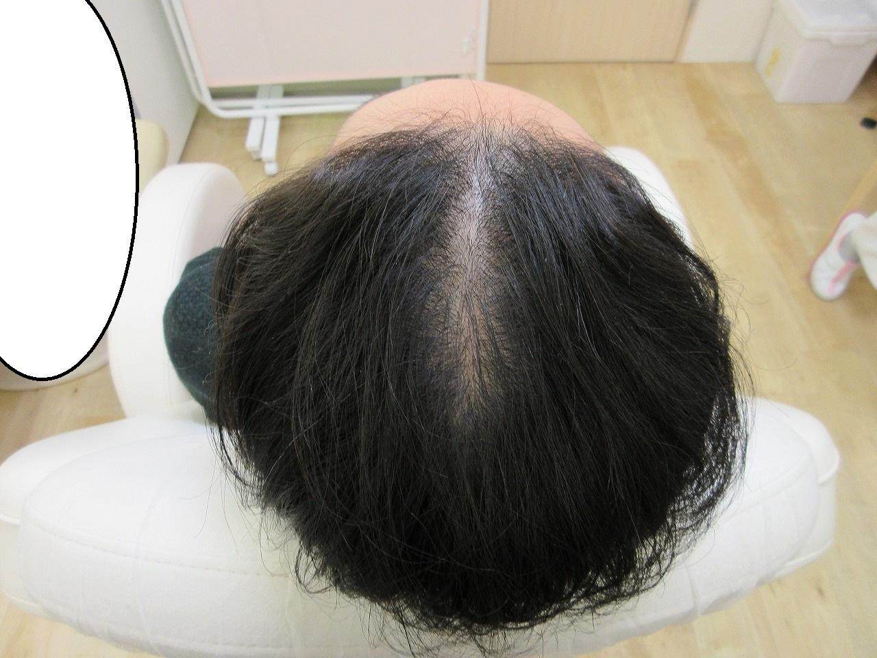 女性の薄毛治療。頭皮のメソセラピー。7回目で効果が出始めています。