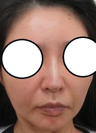 糸による隆鼻術。Gメッシュ4本。直後の状態。