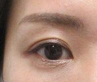 下眼瞼のまつ毛のホクロ切除。4か月目の経過。