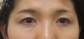 目の下のクマに生の脂肪幹細胞上清液注入。2か月後の経過+直後の腫れ具合。