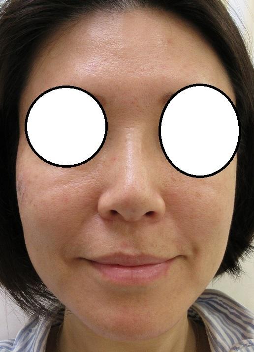 鼻筋を通す新しい糸オメガVLの1週目の経過。正面からの変化。