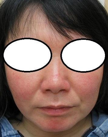 ウルトラセルQプラスシリーズ3回とエラボトックス2回で4か月半で小顔になってきました。