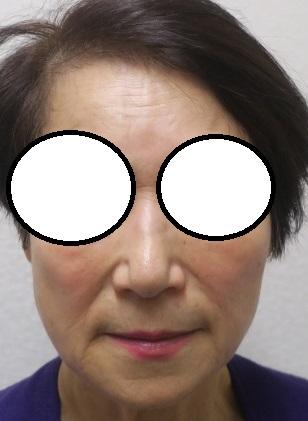70代女性。セルフロックリフト+マリオネットラインへヒアルロン酸注入しました。2か月目。