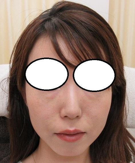 糸リフト治療後3か月半目の経過。本日は目の下とほうれい線に脂肪幹細胞上清液を注入させていただきました。