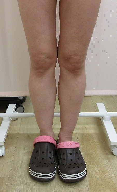 脂肪吸引では難しい膝上の脂肪をウルトラセルQプラスリニアで直後から引き締まりました。