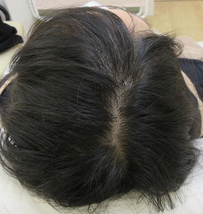 豊洲で薄毛治療。女性に対する薄毛メソセラピー9回目の経過。