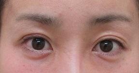 二重埋没法、右目のみ。直後、2日目の経過。腫れ具合を参考にしてくださいね。