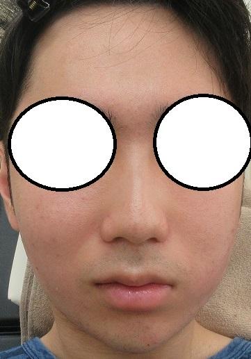 顔面の脂肪吸引+その脂肪をアゴへ注入+糸リフト(セルフロックリフト)、直後の状態。