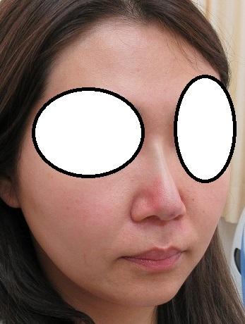 糸による鼻筋形成術。オメガVL。直後の変化。きれいな鼻筋ができてきてます。