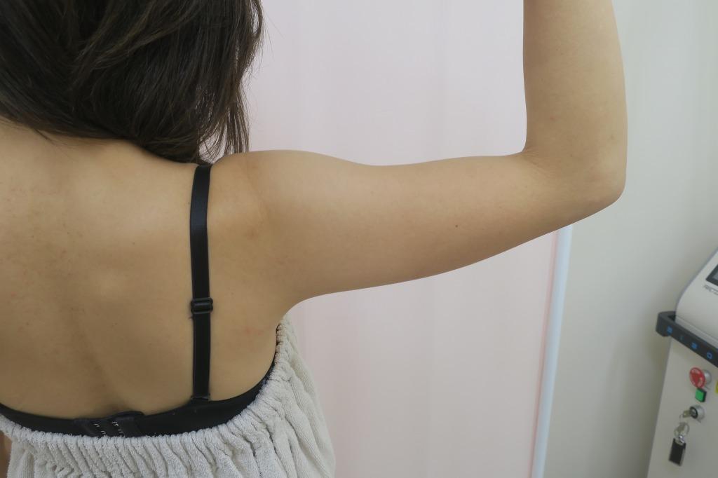 二の腕の脂肪吸引 1.5か月目の経過 傷の状態も参考にして下さい。