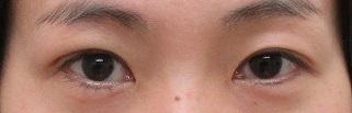 右目のみの二重術。直後の状態。