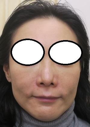 目の下のクマの手術後5か月目の経過。今回はほうれい線にヒアルロン酸を注入させて頂きました(直後の状態)