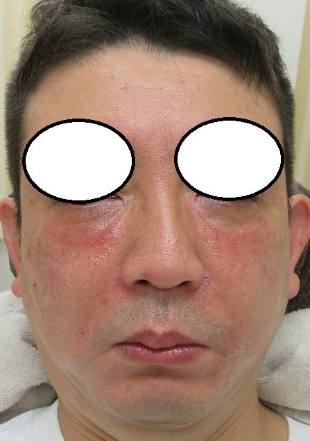 メンズの切らない目の下のクマの手術、プレミアム。直後の状態。
