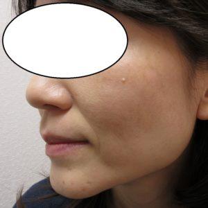 両頬のシミの経過。1か月目。左右で治り方の経過が違います。