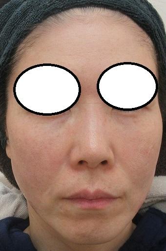 目の下・ゴルゴ線への脂肪注入。8カ月目の経過。