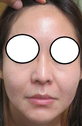 ゼオスキンのニキビ(ニキビ瘢痕)治療。10カ月目の経過。