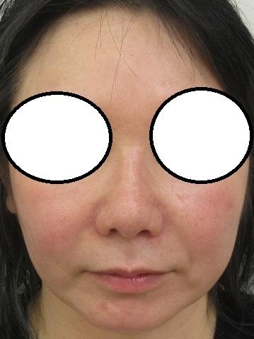 ウルトラセルQプラス+糸による鼻形成の経過。