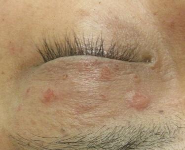 瞼の老人性イボのレーザー治療。直後の状態。