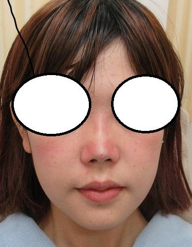 糸による鼻尖形成+鼻筋形成。クレオパトラノーズ4本ずつ。直後の状態。