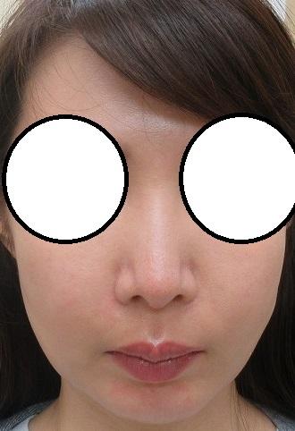 顔の脂肪吸引+ほうれい線へヒアルロン酸注入。1カ月目の経過。