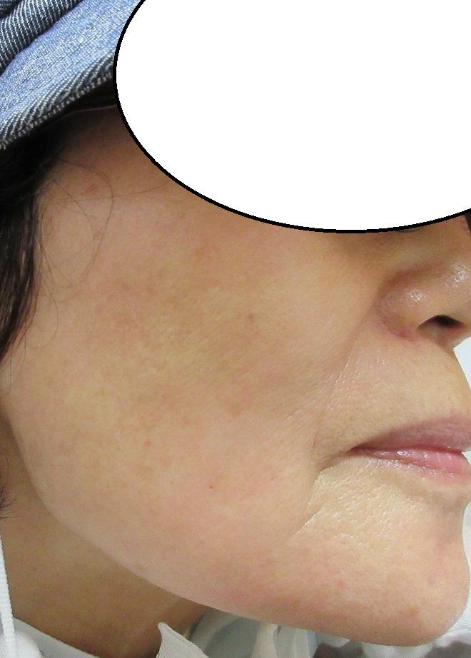 大きなシミでもしっかりケアできてれば2年以上経過しても美肌を維持できます。70代女性。
