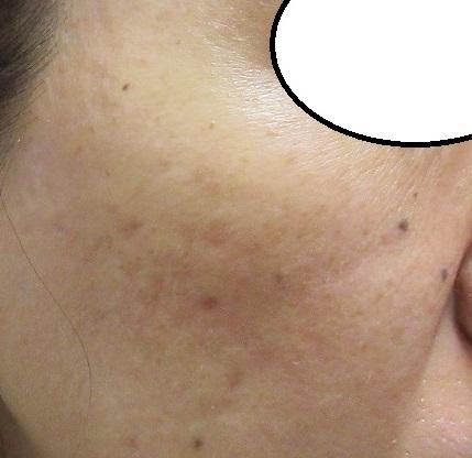 顔イボレーザー1か月目の経過。きれいになってきました。