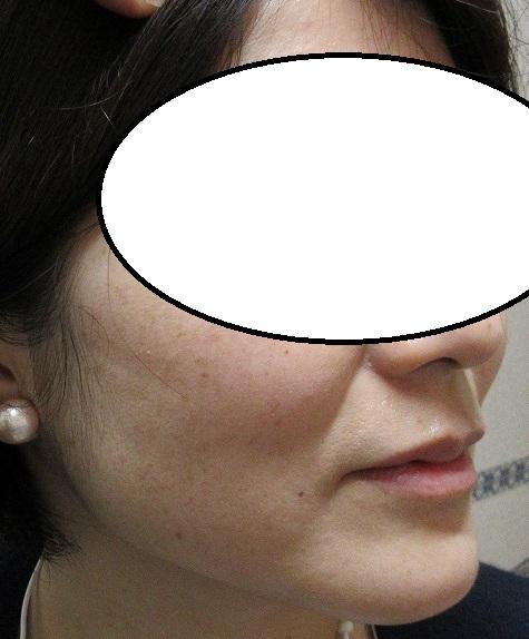 両頬のシミ治療の経過。5か月目。だいぶきれいになってきました。