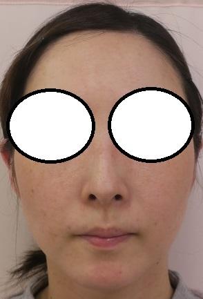 ウルトラセルQプラス2回施行後4か月目(10月と12月に施行)。ついでに本日3回目を施行。明日から日本美容外科学会。