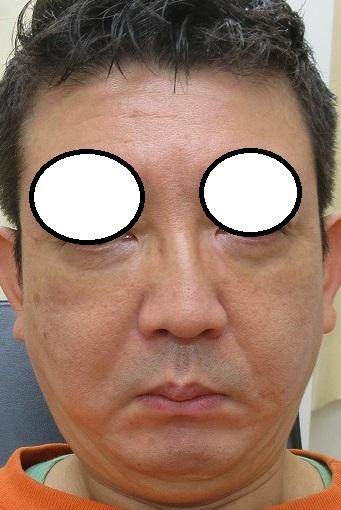 目の下のクマの手術。9日目の経過。