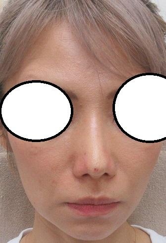 Gコグノーズ4本で鼻尖形成。直後の状態。