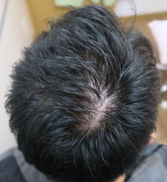 薄毛(AGA)治療開始2年目。明らかに改善していますが当初の勢いはなくなってきています。それでも継続を!