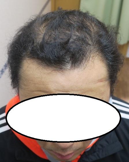 豊洲で薄毛治療。約3年で劇的に変わってきました。継続は力なり。