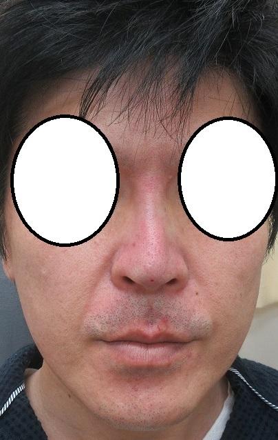 糸による鼻筋形成+鼻尖形成(Gメッシュ+Gコグノーズ、合計8本)。直後の状態。